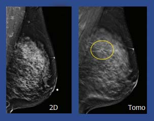 Digital 3D Mammography (Tomosynthesis) image